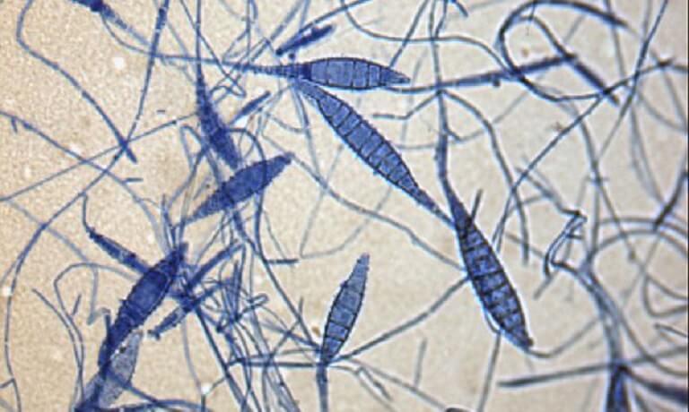 Hình ảnh tế bào nấm hắc lào dưới kính hiển vi