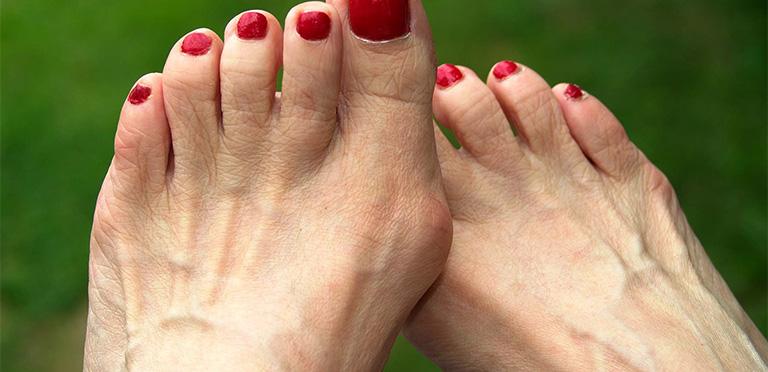 Đau ngón chân cái bị sưng nhức
