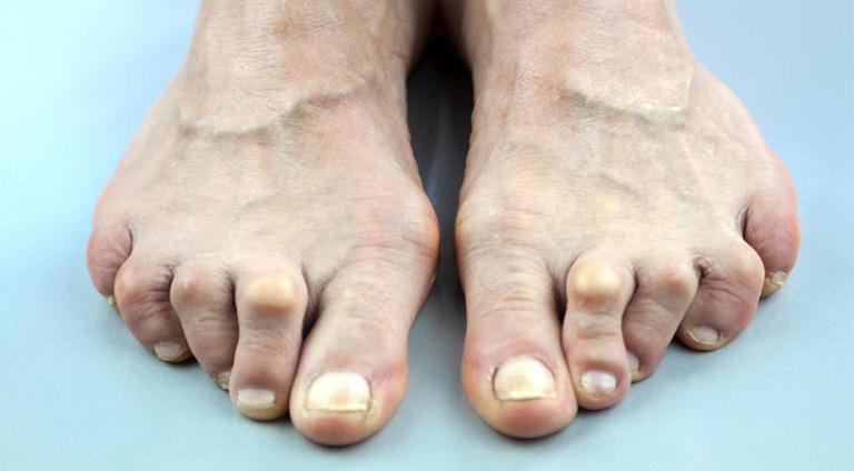 Đau ngón chân cái là dấu hiệu bệnh gout