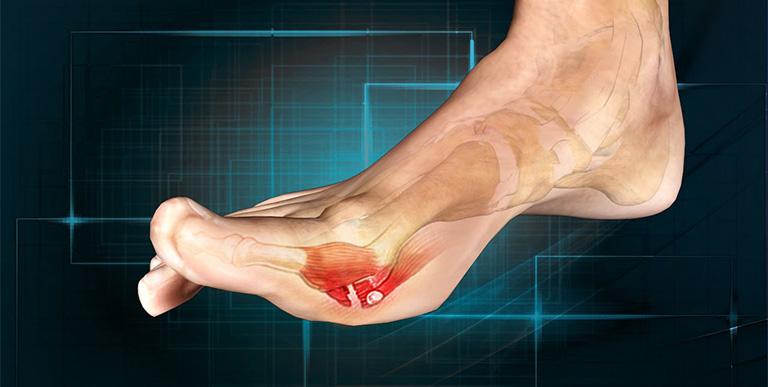 Đau đau ngón chân cái bên trái