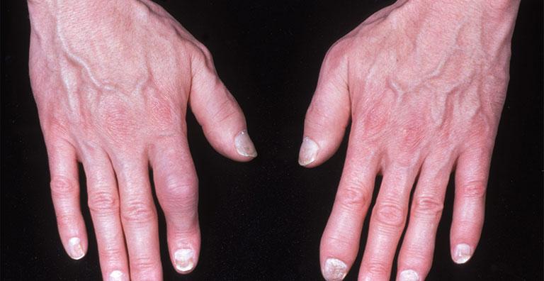 Đầu ngón tay bị sưng đỏ đau nhức