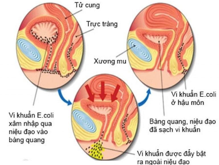 Hành trình gây bệnh nhiễm khuẩn tiết niệu của vi khuẩn E Coli