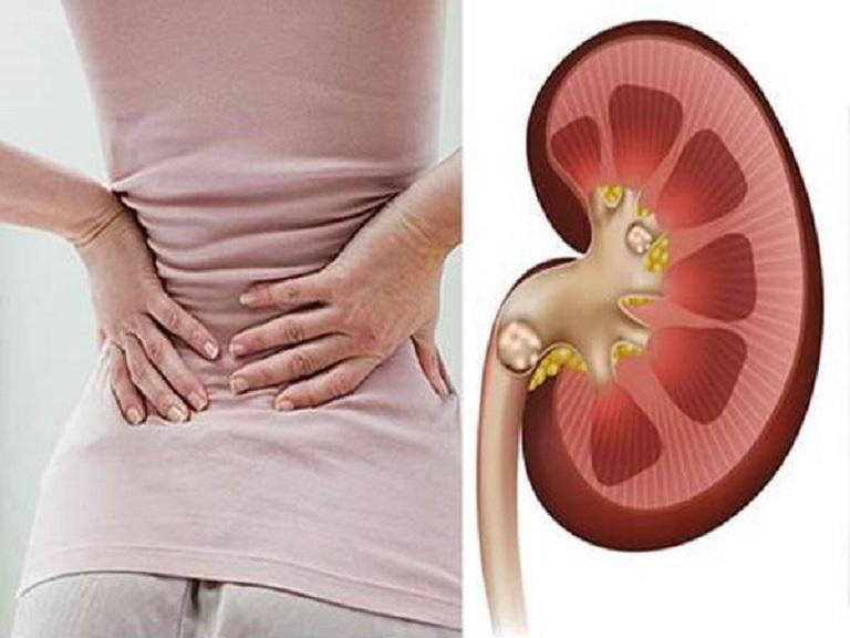 Đau lưng là một triệu chứng thường gặp của bệnh nhiễm khuẩn tiết niệu