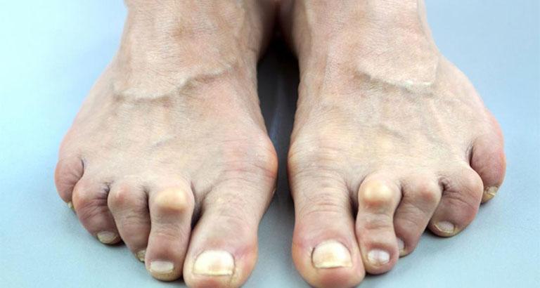 Nổi cục u ở ngón chân