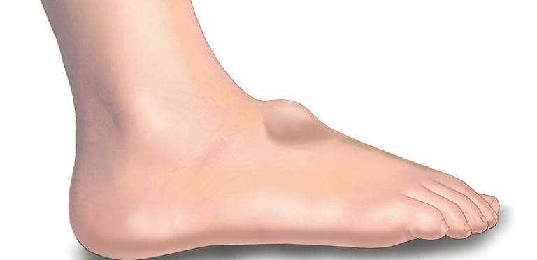 điều trị nổi cục ở mu bàn chân