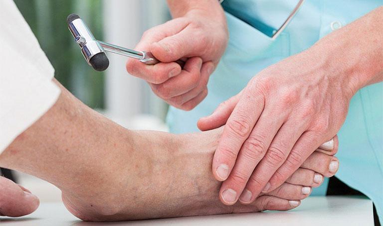 Nổi cục u ở ngón chân có nguy hiểm không
