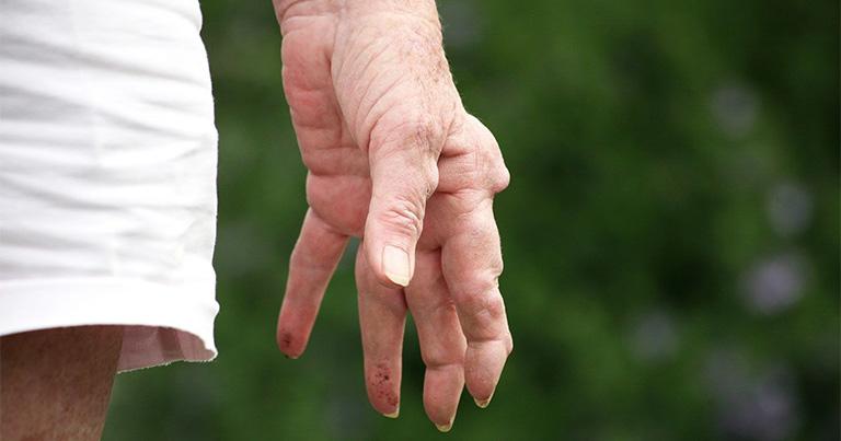 Nổi cục u ở khớp ngón tay