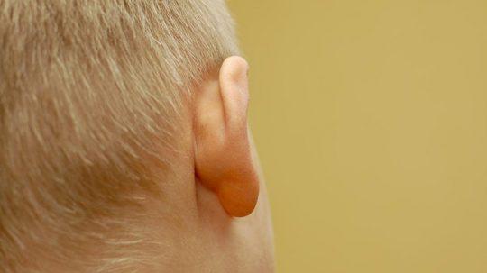 Mọc hạch sau tai ở bệnh nhân ung thư thường không gây đau, nên dễ bị coi thường và bỏ qua