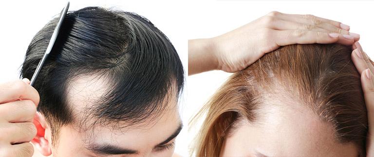 Hình ảnh rụng tóc ở nam nữ dẫn tới hói đầu