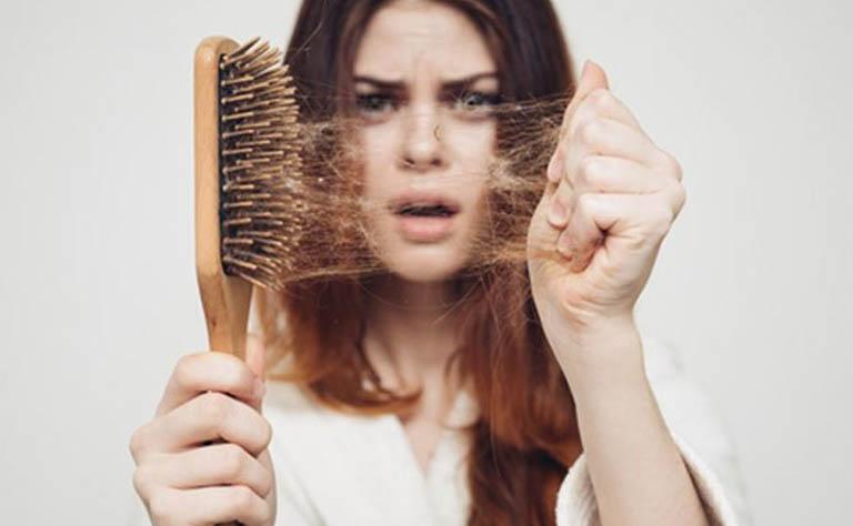 Thuốc chống rụng tóc - giải pháp tốt giúp lấy lại mái tóc chắc khỏe
