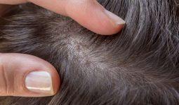 Tóc rụng có hạt trắng ở chân tóc