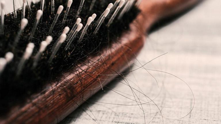 Có nhiều nguyên nhân gây ra hiện tượng tóc rụng nhiều