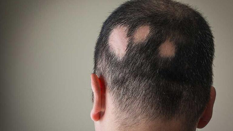 Hắc lào ở trên da đầu có thể để lại sẹo, gây rụng tóc vĩnh viễn ở vùng da bị ảnh hưởng