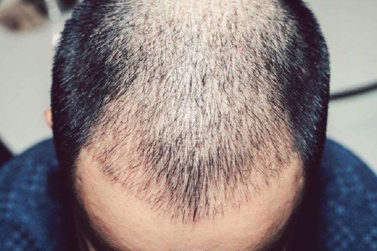 Tóc rụng nhiều ở nam do DHT gây ra