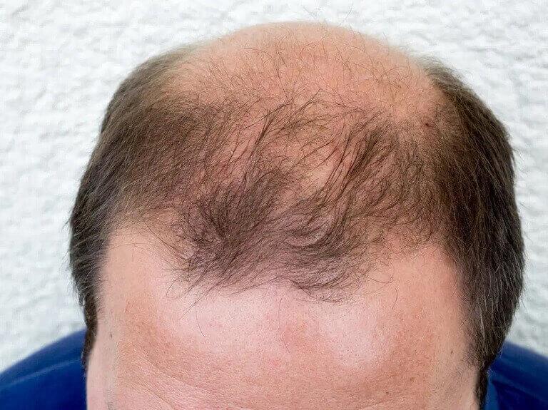Tóc rụng nhiều ở nam giới gây ra các vùng hói theo chữ O, M, U
