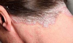 Hình ảnh vảy nến da đầu