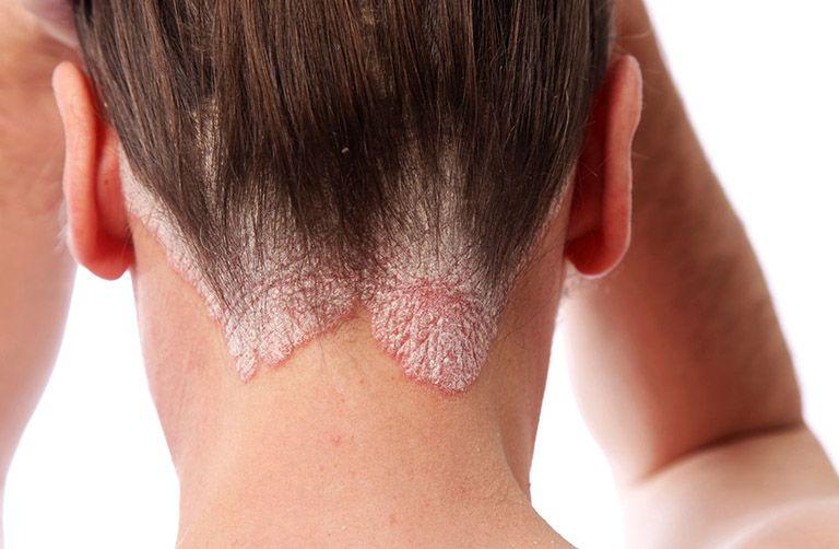 Tế bào thượng bì tăng sinh bất thường ở người bị vảy nến dẫn đến bong tróc da đầu