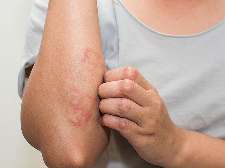 Viêm da dị ứng có nhiều dạng bệnh, biểu hiện tương đồng và khó phân biệt