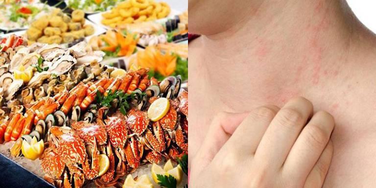 Người bị viêm da tiết bã nên tránh ăn các thực phẩm dễ gây dị ứng như hải sản