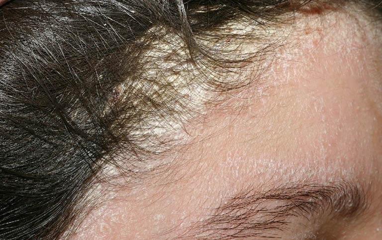 Các mảng bám do viêm da tiết bã da đầu gây mất tính thẩm mỹ cho người bệnh
