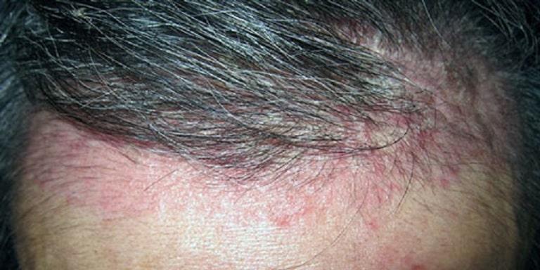Vùng da bị viêm da tiết bã đỏ ửng kèm theo các mảng bám