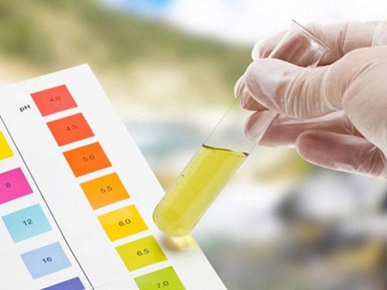 Nam giới có nước tiểu màu vàng hoặc đục khi bị bệnh