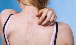 Viêm nang lông thường gây ngứa ngáy, khó chịu