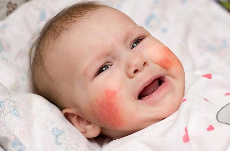 Có tới 10 - 20% trẻ em trên thế giới mắc viêm da dị ứng
