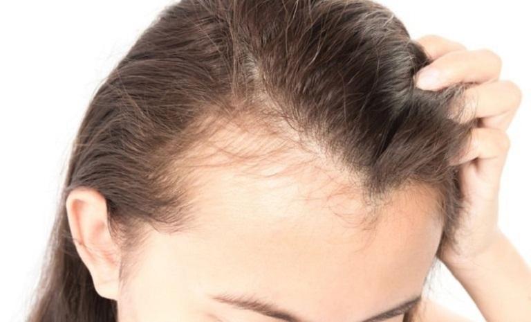 Cách ngăn ngừa gàu tái phát, trả lại mái tóc đẹp và sự tự tin khi giao tiếp