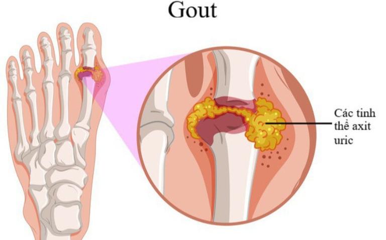 Bệnh gout hình thành do các sự lắng đọng acid uric ngay tại khớp gây sưng viêm và đau nhức