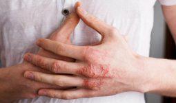 Bệnh chàm - eczema