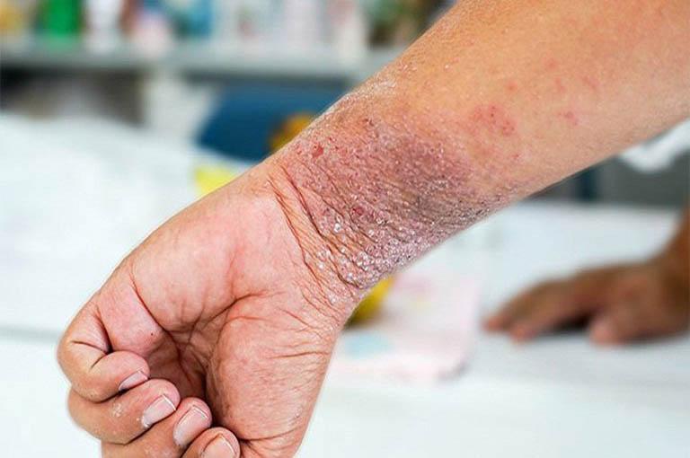 Bệnh chàm xuất hiện ở nhiều vị trí trên cơ thể