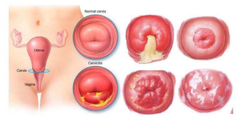 Tình trạng cổ tử cung bình thường và cổ tử cung mắc bệnh lý