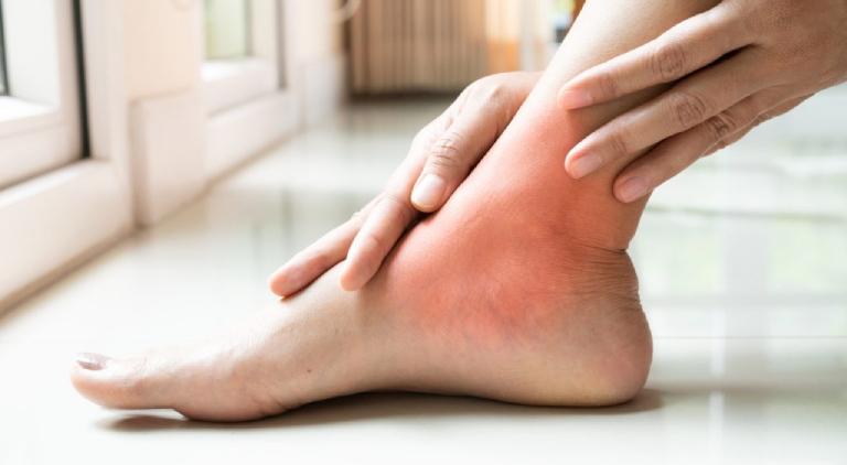 Gout gây ảnh hưởng nghiêm trọng đến đời sống sinh hoạt hàng ngày, vì vậy bạn cần có biện pháp phòng tránh hợp lý
