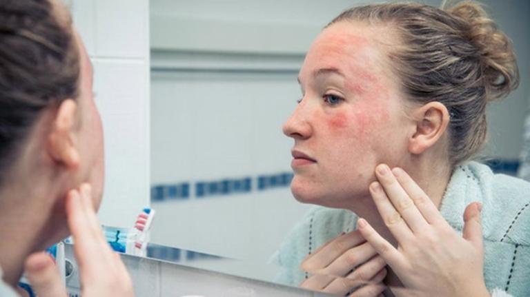 Cần tiến hành điều trị da bị nhiễm corticoid ngay từ giai đoạn nhẹ để tránh gây tổn thương nặng nề