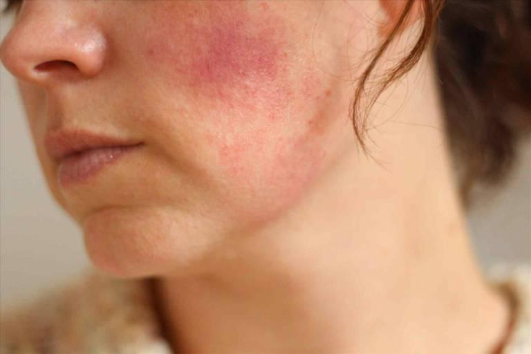 Da bị nhiễm corticoid rất nhạy cảm, giảm sức đề kháng và dễ bị kích ứng bởi các tác nhân gây hại