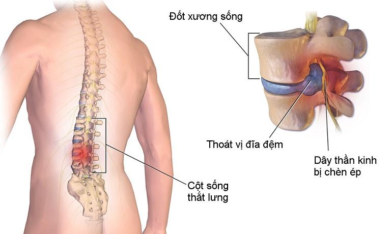 Thoát vị đĩa đệm là một trong những nguyên nhân gây đau lưng khi trở trời