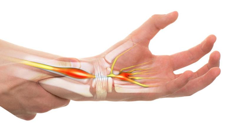 Các dây chằng ở cổ tay là nguyên nhân gây hội chứng ống cổ tay với dấu hiệu đặc trưng là tê các đầu ngón tay