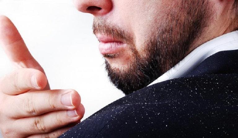Tình trạng đầu ra nhiều gàu có thể gặp ở cả nam giới và nữ giới