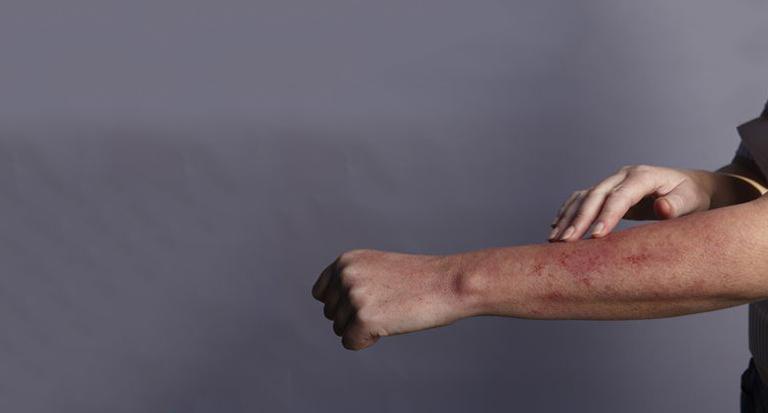 Các triệu chứng dị ứng thuốc phổ biến hiện thị trên da và hô hấp