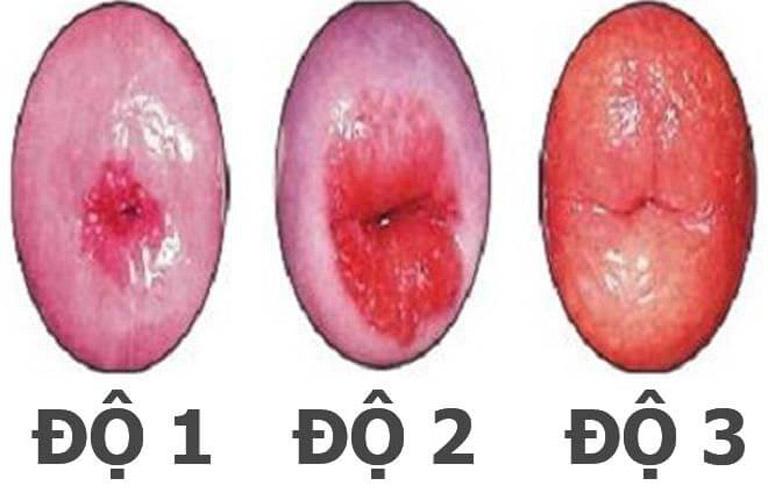 Hình ảnh các cấp độ viêm lộ tuyến cổ tử cung