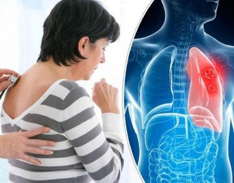 Áp lực không khí tác động lên cơ xương dẫn tới tình trạng căng cứng gây đau nhức