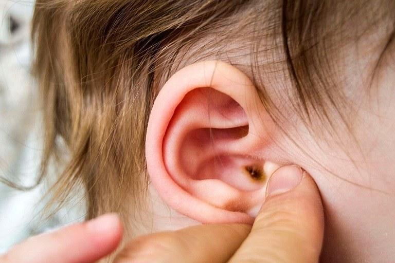 Ho viêm phế quản kéo dài khiến trẻ gặp biến chứng viêm tai giữa