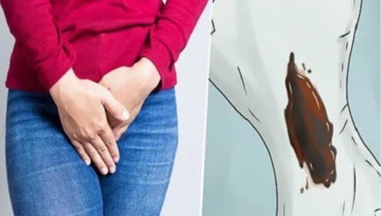 Ra khí hư màu đen có thể là dấu hiệu của nhiều bệnh lý phụ khoa nguy hiểm
