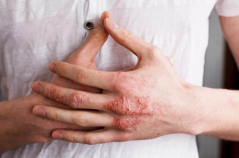 Muốn điều trị bệnh chàm cần phải xác định được nguyên nhân gây bệnh
