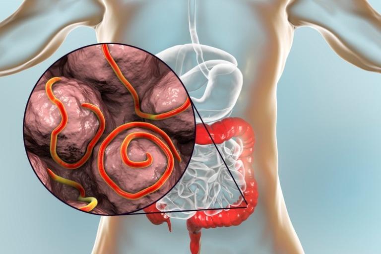 Đau bụng từng cơn cũng có thể xảy ra khi cơ thể bạn bị nhiễm giun hoặc ký sinh trùng