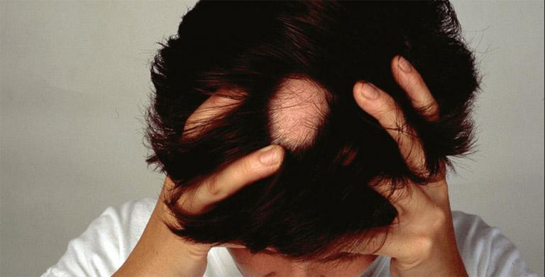Rụng tóc từng mảng còn được gọi là rụng tóc từng vùng