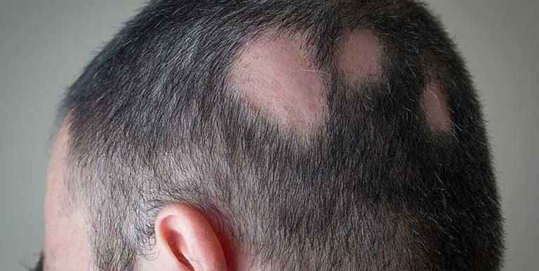 Rụng tóc diễn ra đột ngột, phát triển chỉ trong vài ngày hoặc vài tuần