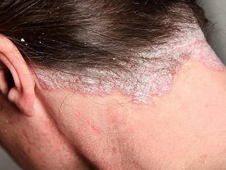 Nguyên nhân do các bệnh lý ở vùng da đầu khiến tóc rụng