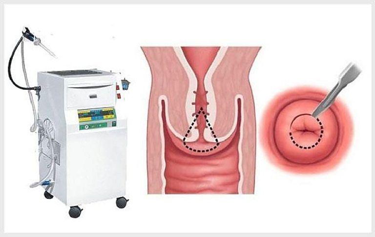 Phương pháp dao leep được tiến hành cho bệnh nhân mắc viêm lộ tuyến cổ tử cung diện rộng